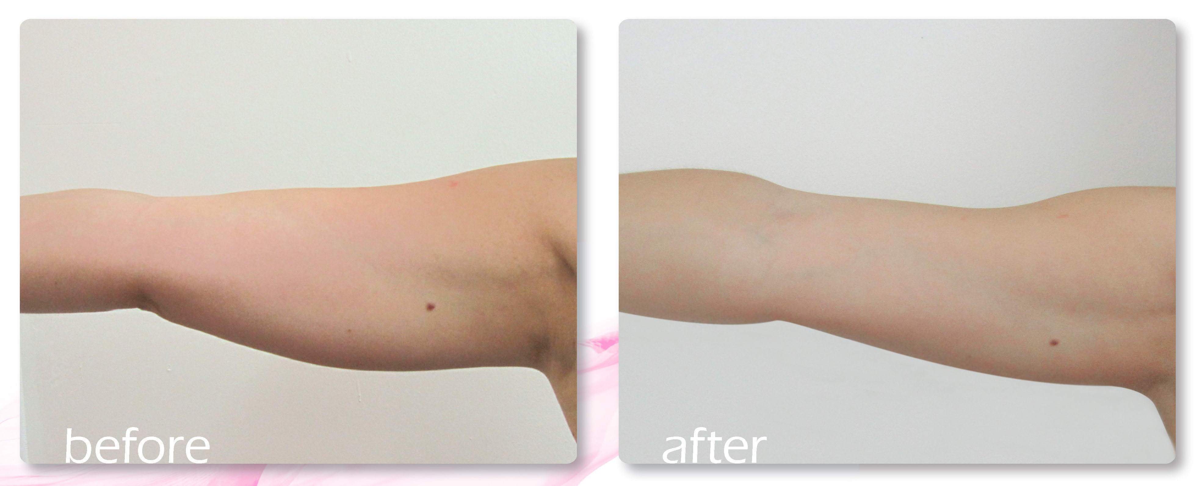 2 Post Lift Two Post Car Lifts from ASED eals Endermologie before and after pictures