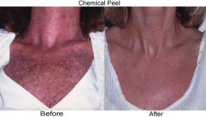 Chemical Peels Skyn Clinic And Apothecary
